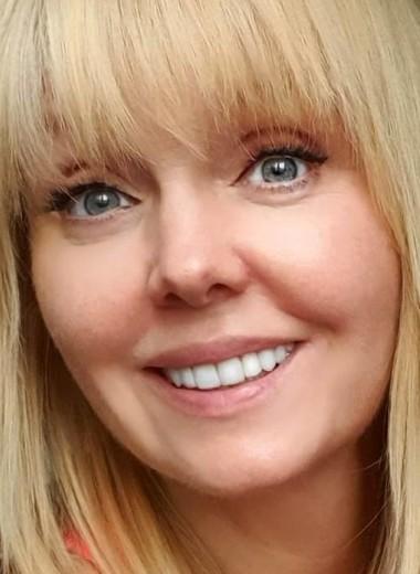 «Уколы ботокса изменили мое выражение лица»: Валерия рассказала о пластике