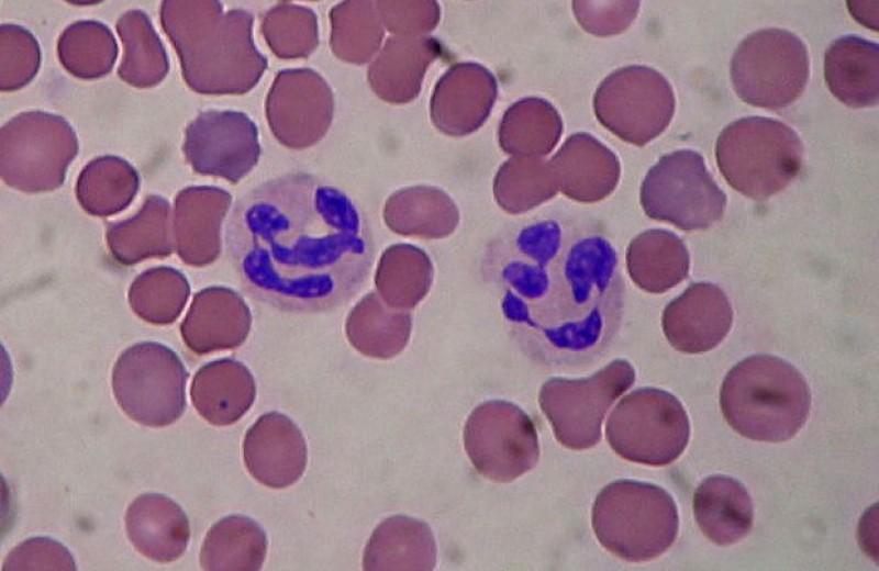 Дефицит тестостерона помешал лейкоцитам справиться с меланомой