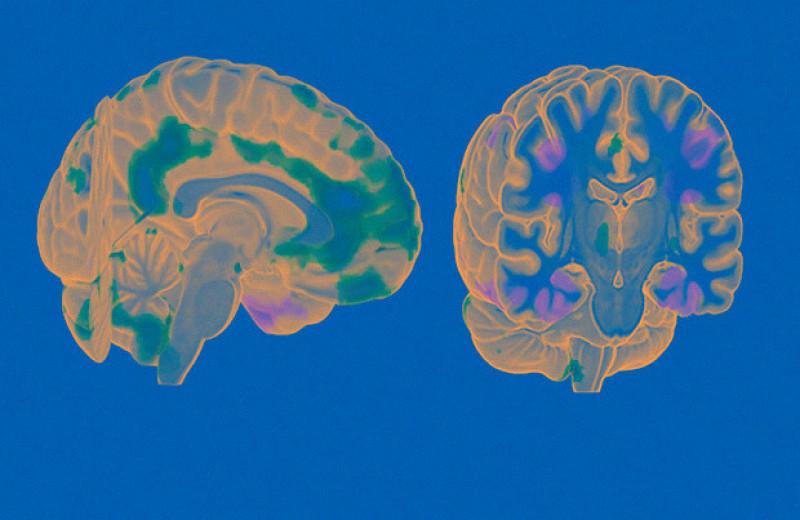 В мозге нашли «включатель» сознания