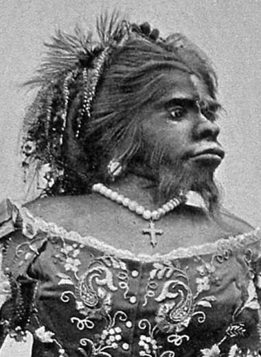 Поверила в любовь: трагичная история брака «женщины-гориллы» Юлии Пастрана