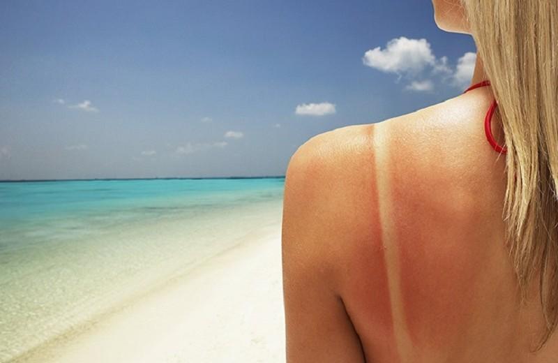 Что делать, если сгорела на солнце — инструкция от экспертов