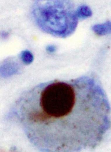 T-клетки указали на болезнь Паркинсона до появления симптомов