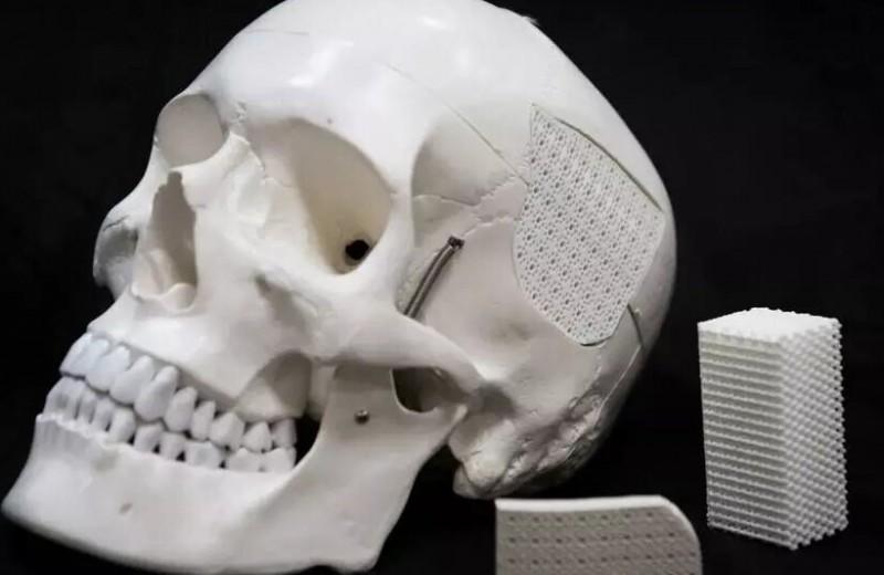 Новый полимер на основе скорлупы поможет исцелить травмы черепа