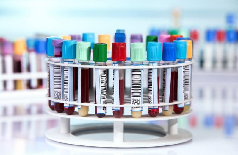 Анализ крови на пищевую непереносимость: как он работает