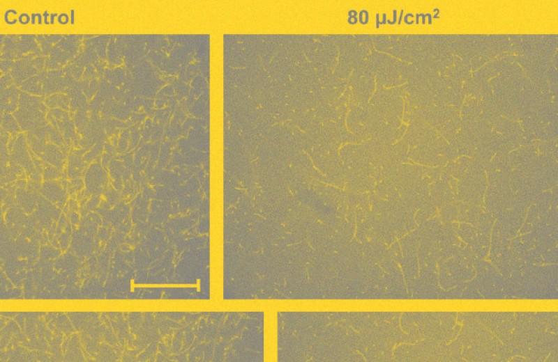 Терагерцовое излучение помешало образованию белковых нитей