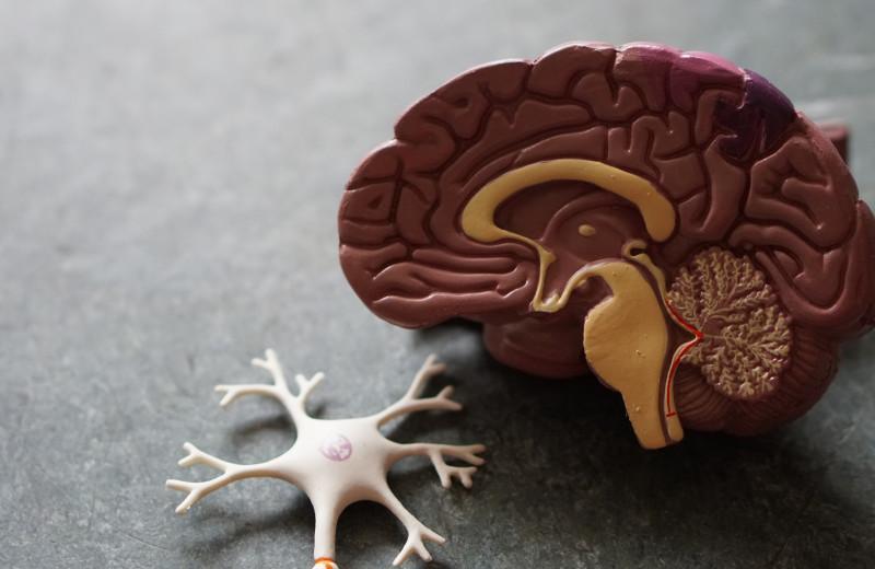 В мозге двух пациентов с болезнью Альцгеймера обнаружили отложения меди и железа