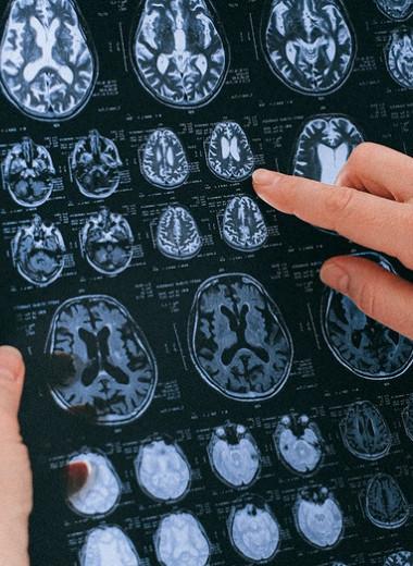Нейрохирург рассказал опяти привычках, которые сделают нас умнее