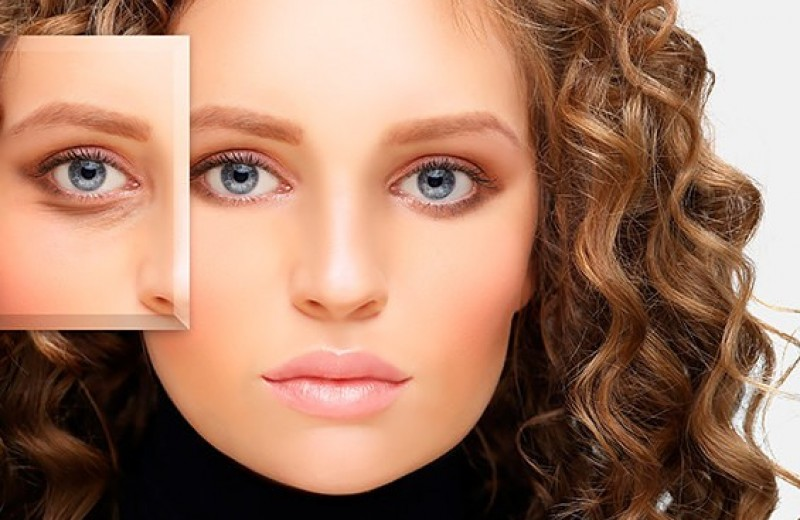 Отеки под глазами: причины и лучшие средства для лечения