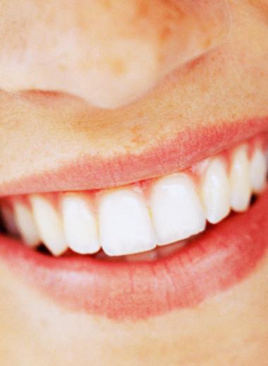 Что такое бруксизм: как скрежетание зубами портит наше здоровье