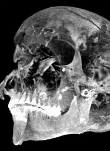 Томография древней мумии выявила страшные подробности насильственной смерти
