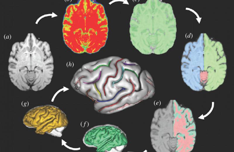 Полушария мозга шимпанзе вновь признали асимметричными
