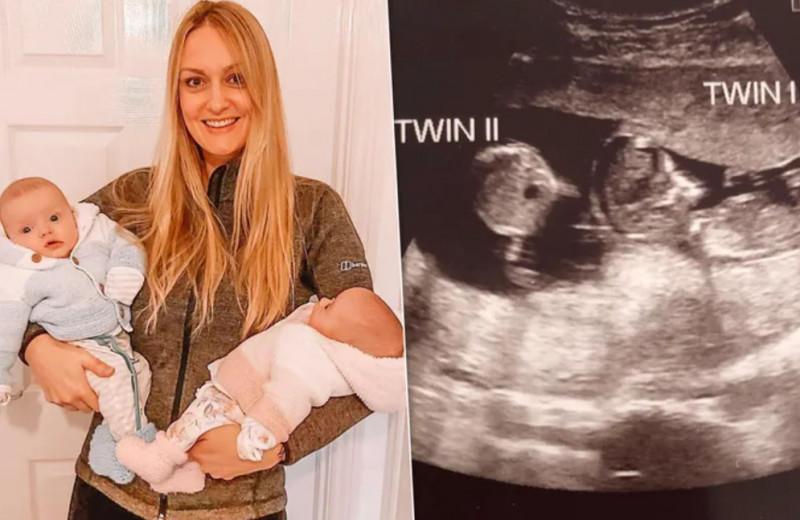 Вот это сюрприз: британка забеременела во время беременности