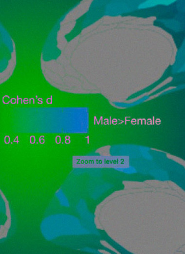 Дисбаланс активности мозга при аутизме связали с половыми различиями