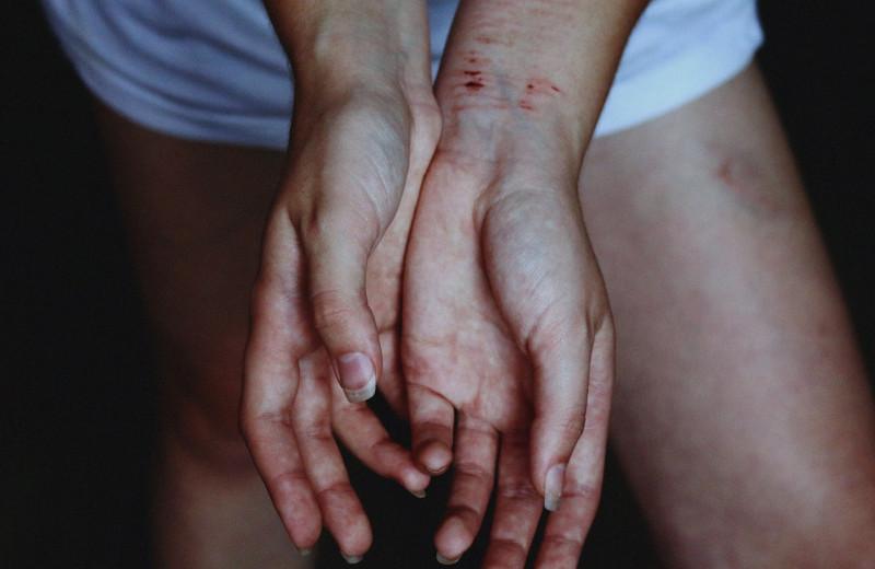 Пришел на работу и 10 раз ударил ножом: как в России мужья мстят бывшим женам