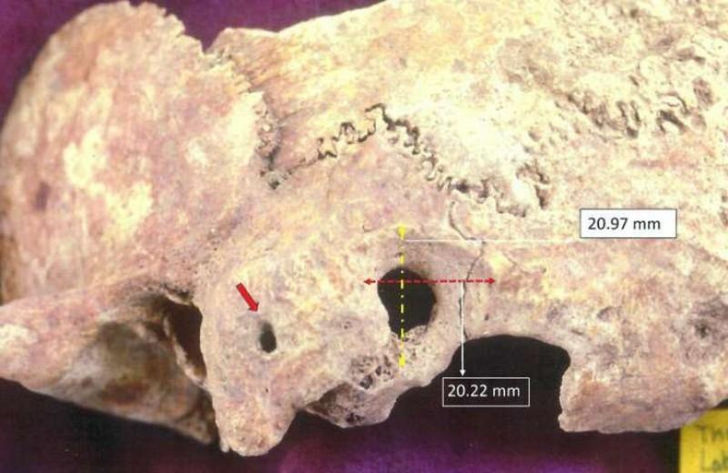 Византийский хирург провёл операцию на головном мозге ещё в IV–VII веке!