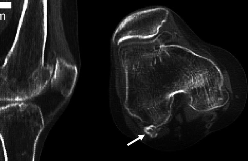 В теле человека найдена кость, считавшаяся утраченной