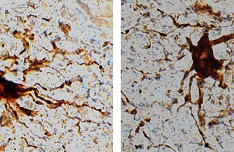 В мозге человека обнаружили «клетки-зомби», увеличивающие активность после смерти