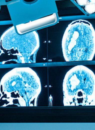 Записки нейрохирурга. Где обитает дар речи и почему билингвизм полезен для мозга