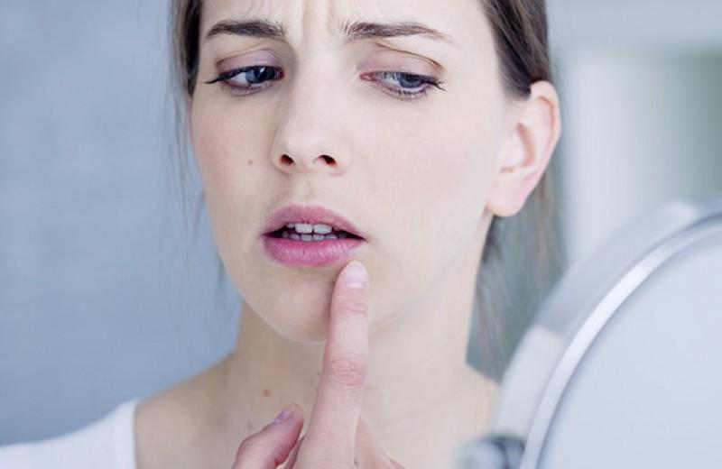 Сама себе лекарь: как быстро вылечить простуду на губе