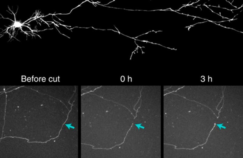Генная терапия предотвратила слепоту у мышей с глаукомой