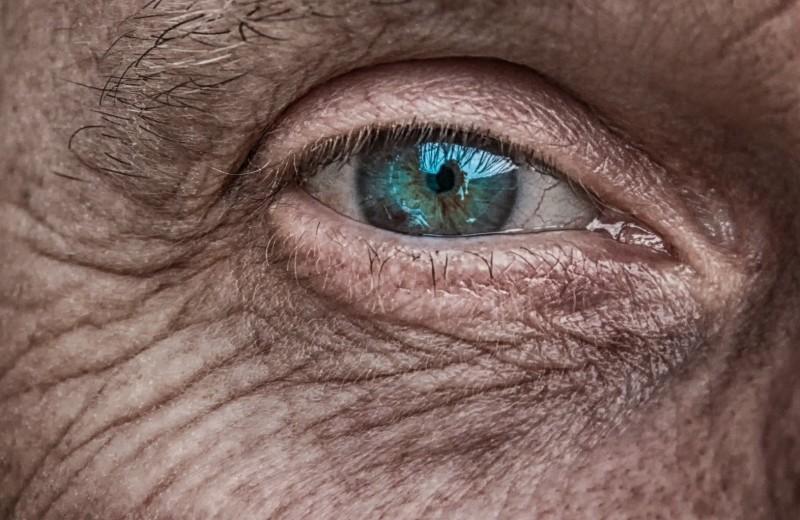 Тайные линии: что скрывает наша кожа