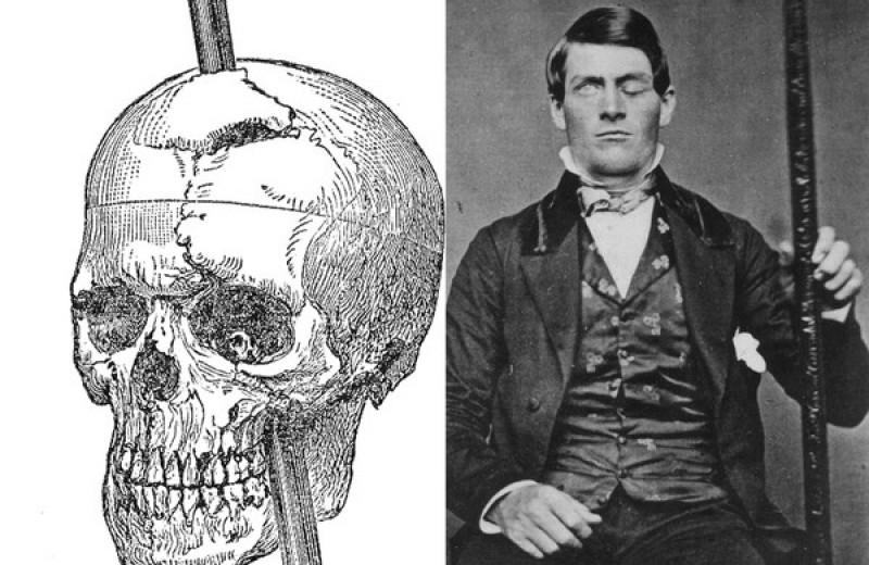 Роковой штырь: как строитель потерял часть мозга и стал плохим парнем