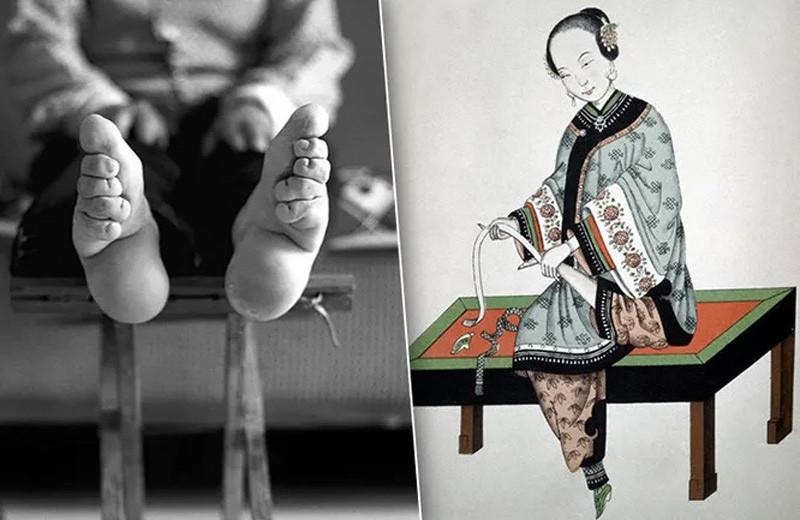 Сотворение «золотых лотосов»: страшный сексуальный фетиш бинтования ног Китая
