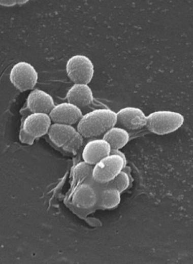 Сахарозаменители повысили патогенность кишечных бактерий