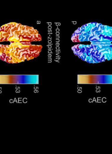 Снотворное помогло мужчине с травмой головного мозга снова ходить и говорить. Но ненадолго