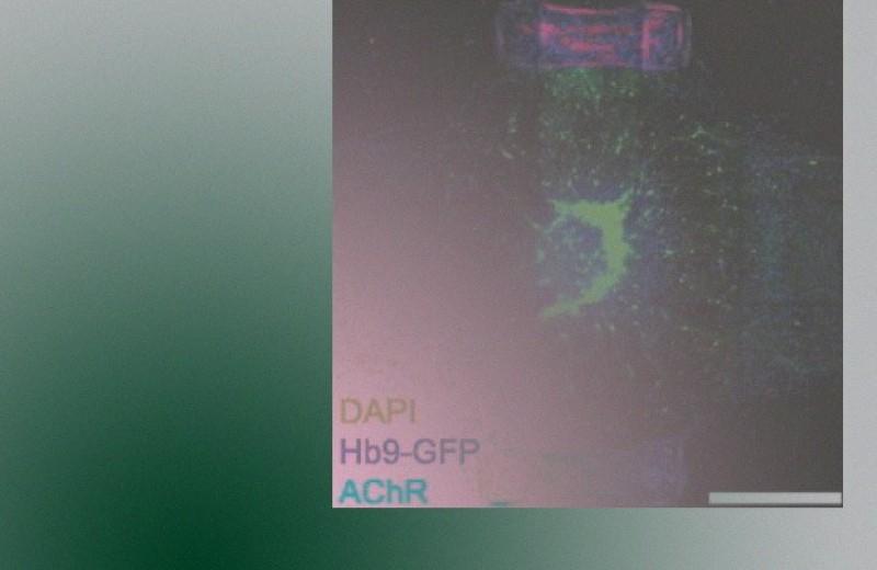 Нервные и мышечные клетки ускорили развитие друг друга