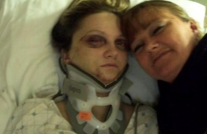 Абьюз 80 уровня: девушка оказалась в инвалидной коляске из-за ревнивого бывшего