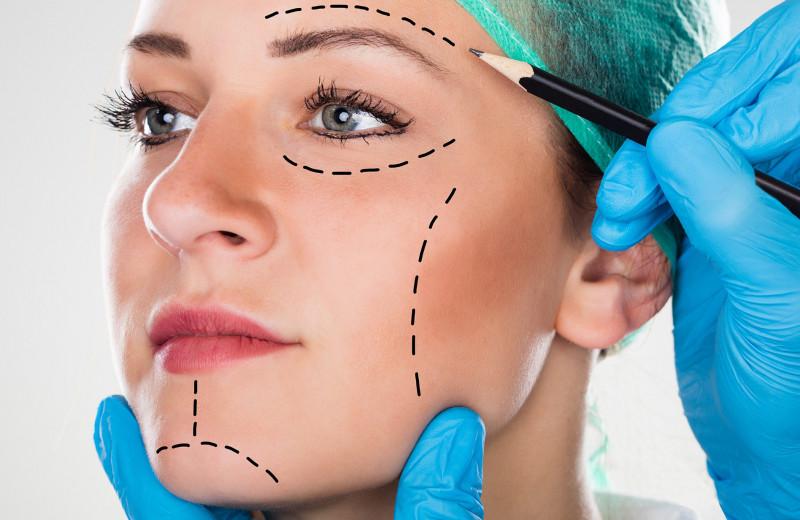 Как пластические операции меняют лицо: впечатляющие фото до и после
