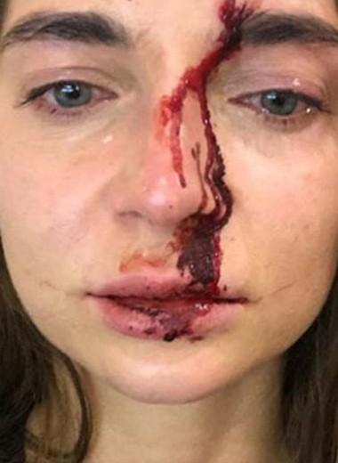Кровавая красота: косметика и косметологи, которые убивали людей