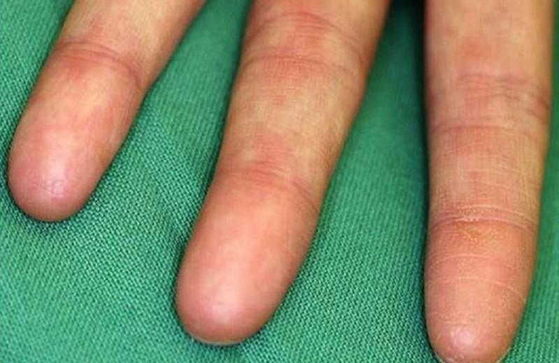 Люди без отпечатков пальцев: как такое возможно