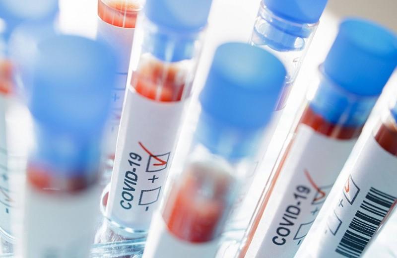 «В России должны погибнуть 1,5 млн, чтобы выработать популяционный иммунитет»: когда создадут лекарство от коронавируса?
