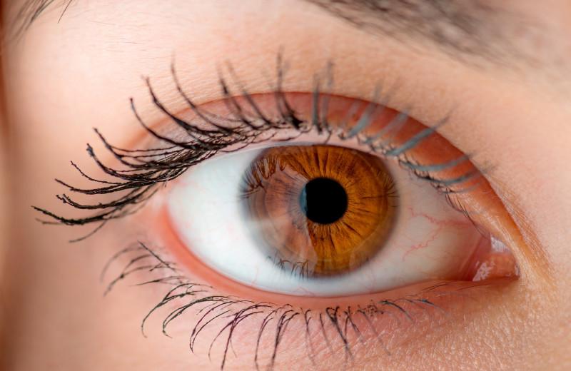 Косметические проблемы, которые могут означать серьезную болезнь: не пропусти!