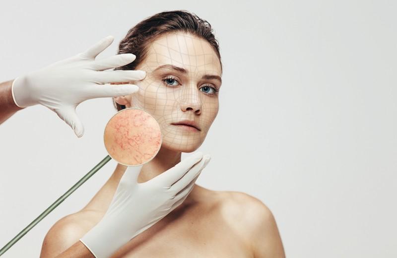 #инструктаж: как избавиться от сосудистой сетки на лице и теле