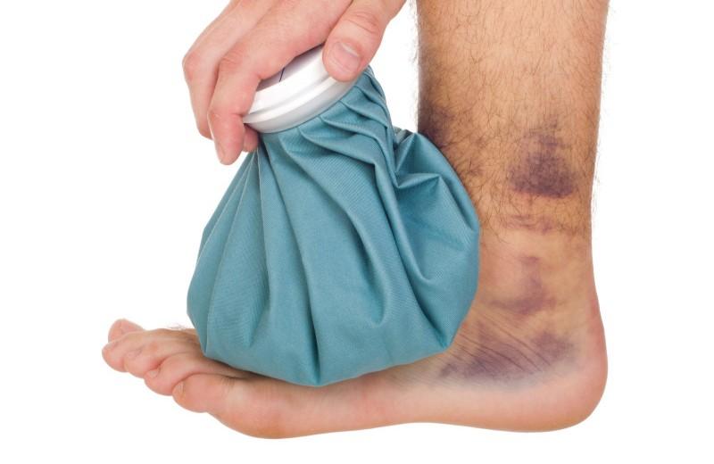 Удары, растяжения, травмы, укусы: лечимся в домашних условиях