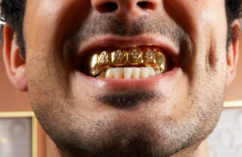 Подточить клыки, установить камеру: странные запросы пациентов стоматолога