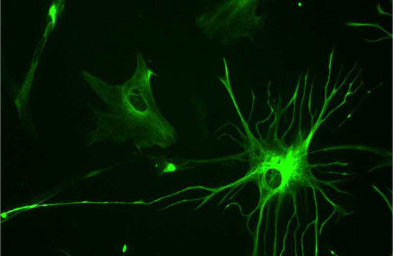 Астроциты уличили в поедании синапсов взрослых мышей