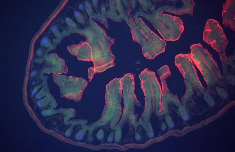 Целлюлоза помогла донорской микробиоте повысить чувствительность к инсулину у пациентов с ожирением
