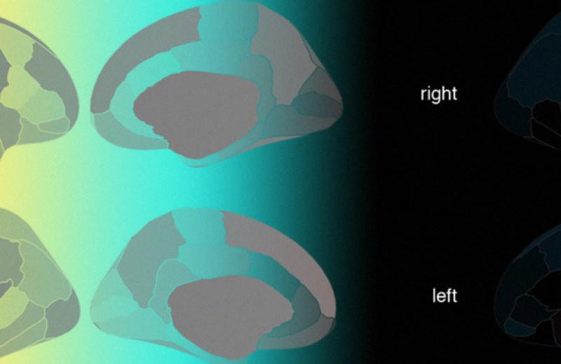Мужской мозг отличился большей вариативностью