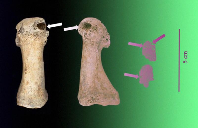 Археологи установили уровень заболеваемости подагрой в средневековом Кембридже