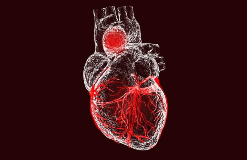 Дела сердечные: что такое кардио-чекап и кому он нужен