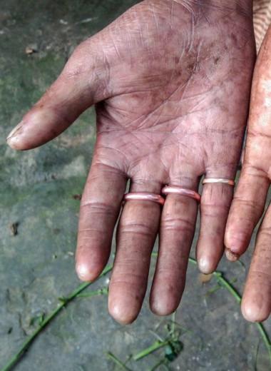 В Бангладеш живет семья без отпечатков пальцев
