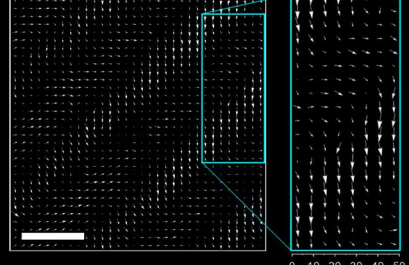 Перестройку доменов в сегнетоэлектрике увидели в реальном времени
