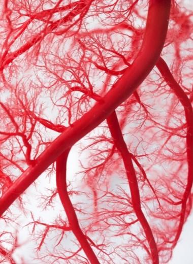 Как понять, что у вас атеросклероз
