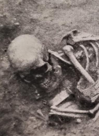 Жители стоянки Вучедоль эпохи ранней бронзы пострадали в детстве от поротического гиперостаза