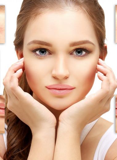 Пигментация на лице: как справиться с нежелательными пятнами