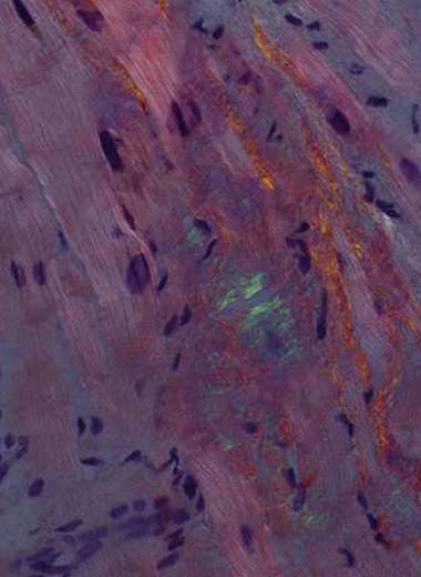 Редактирование с помощью CRISPR/Cas впервые испытали внутривенно